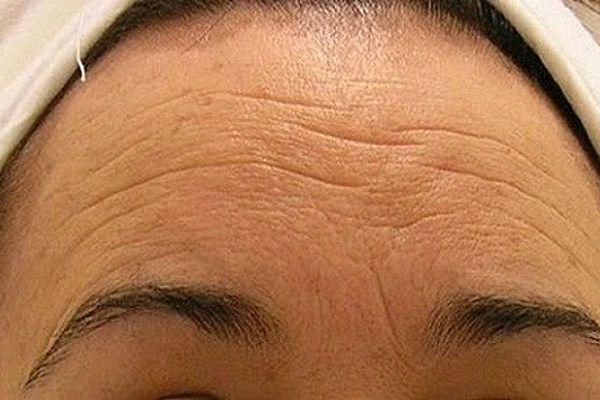 Posledice nedovoljne brige o koži: ne dozvolite da se dese!